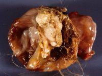 Киста яичника с зачатками зубов и волос