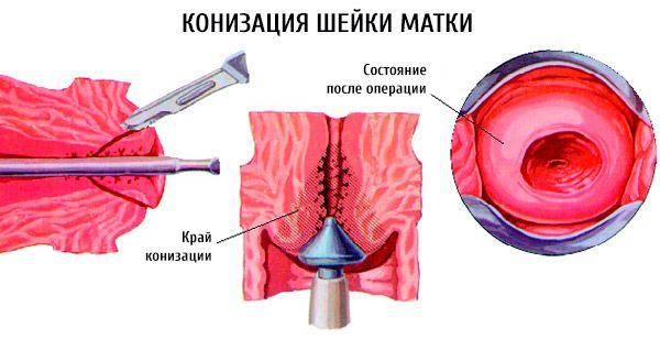 Конизация шейки матки (схема)