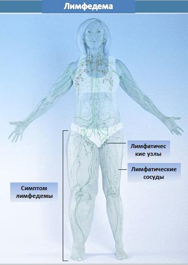 Лимфедема ноги