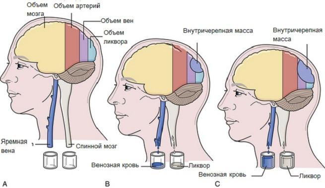 Механизм регуляции внутричерепного давления при наличии мозговой опухоли