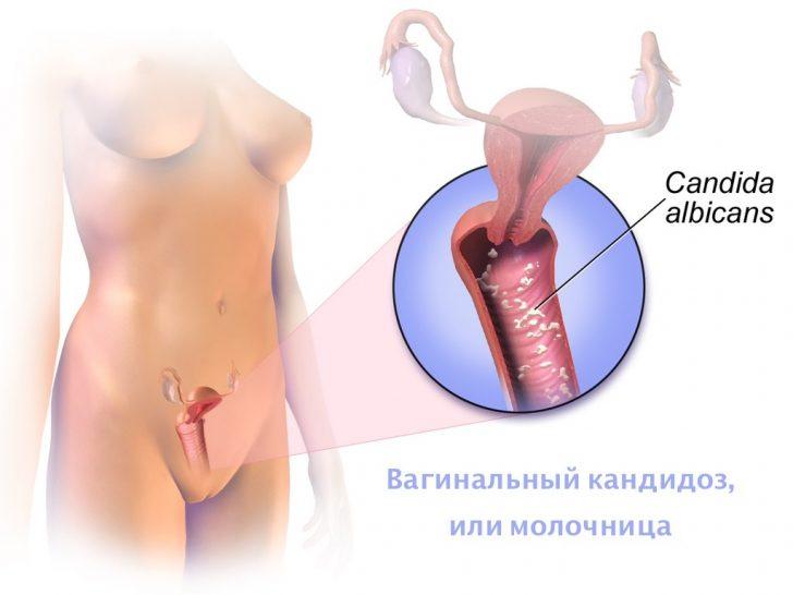 Схема развития молочницы