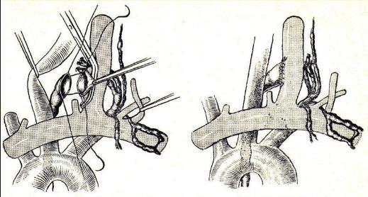 Наложение лимфовенозного анастомоза
