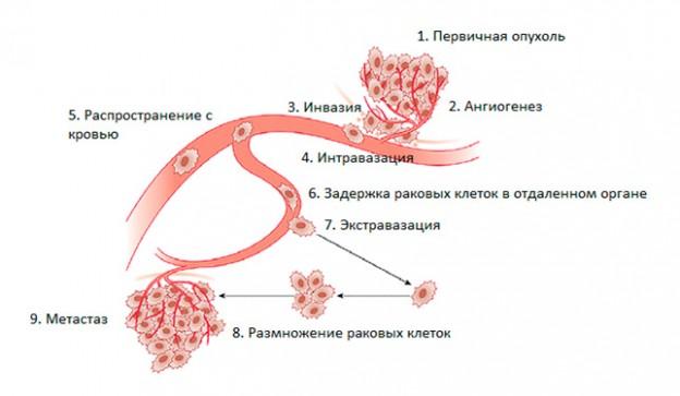 Образование метастазов злокачественной опухоли (схема)