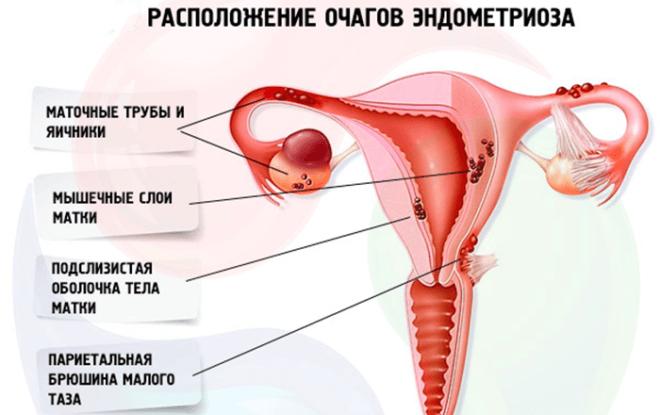 Очаги эндометриоза (схема)
