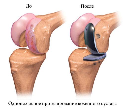 Однополюсное протезирование