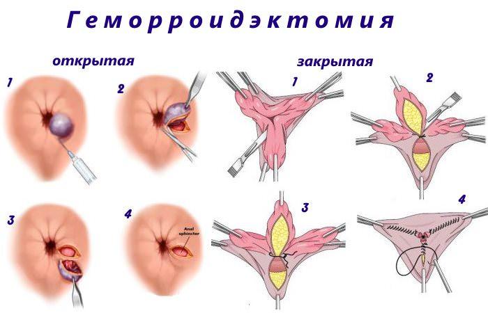 Операция по устранению геморроидальных узлов