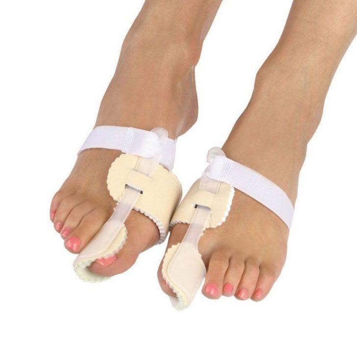 Ортопедические конструкции при наличии шишки на ноге
