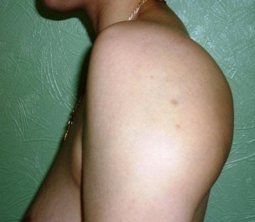 Отёк плечевого сустава