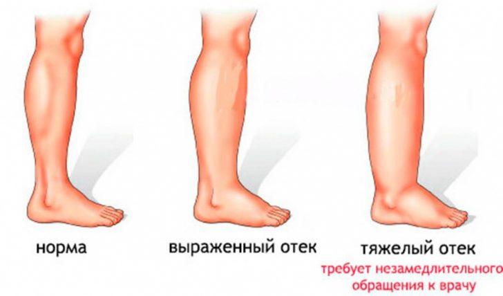 Отеки ноги разной степени выраженности
