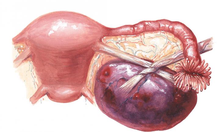 Перекрут ножки кисты яичника (схема)