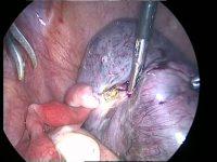 Перекрут ножки маточного узла