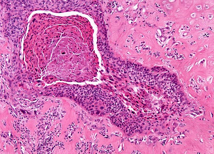 Плоскоклеточный рак гортани (картина под микроскопом)