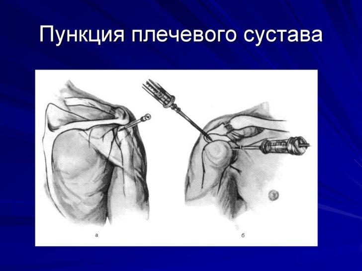 Пункция плечевого сустава