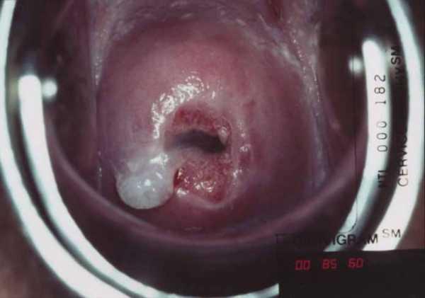 Рак шейки матки (картина при гинекологическом осмотре)