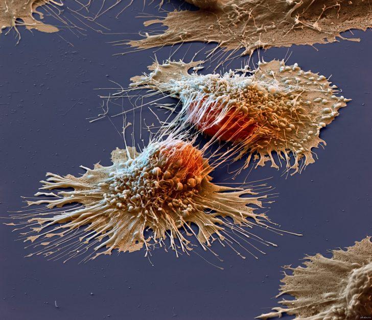 Раковые клетки под микроскопом