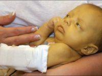 Ребёнок с желтухой