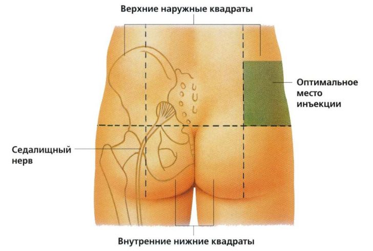 Схема постановки укола