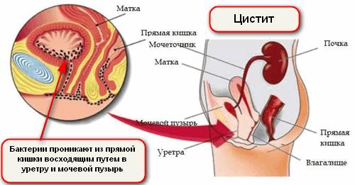 схема проникновения кишечной палочки в мочевой пузырь