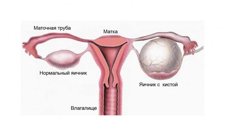 Схема расположения кисты яичника
