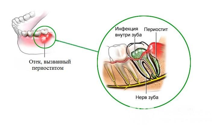 Схема развития флюса