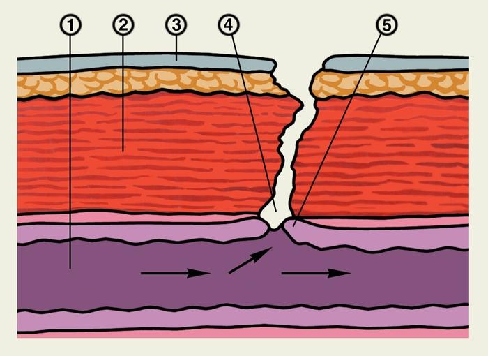 Схема строения свища