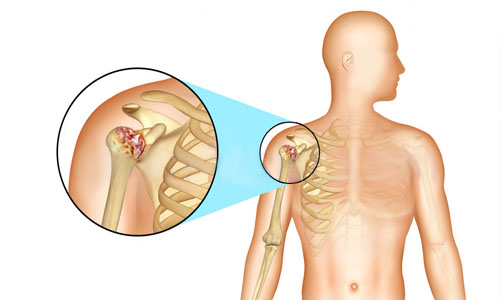 Схема возникновения артрита плеча