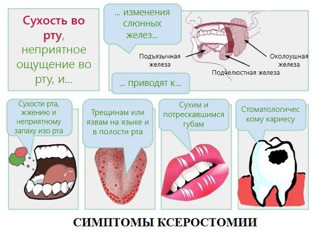 Симптомы ксеростомии