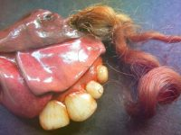 Тератома, извлечённая из брюшной полости