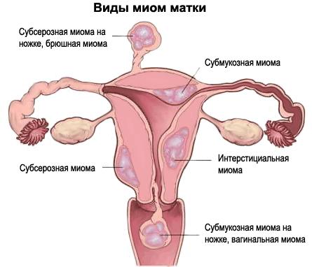 Виды миом матки по типу тканей