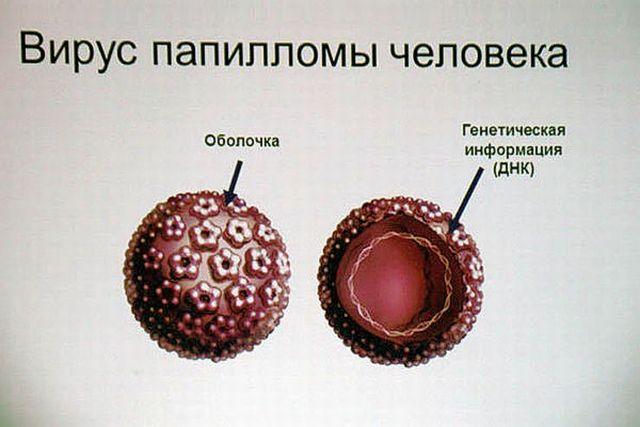 Вирус папилломы человека (схема)