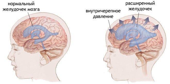 Расширение желудочков мозга при повышенном ВЧД