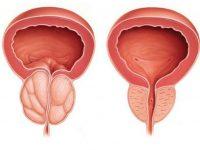 Воспалённая простата по сравнению с нормальной