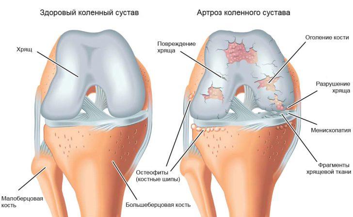 Здоровый сустав и сустав, поражённый артрозом