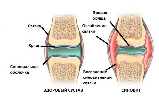 Здоровый сустав и сустав с синовитом