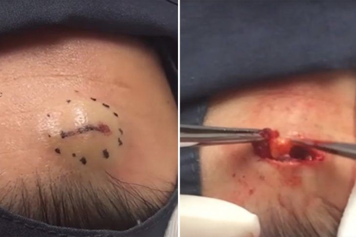 Хирургическое удаление жировика на голове