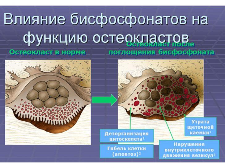 Влияние бисфосфонатов на клетки, разрушающие костную ткань (остеокласты)