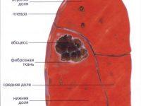 Абсцесс лёгкого (схема)
