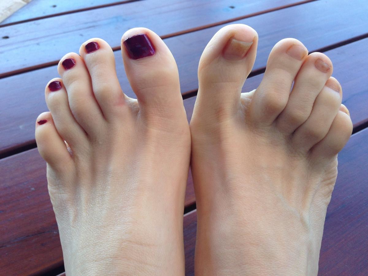 Артрит пальцев ног: как справиться с болезнью