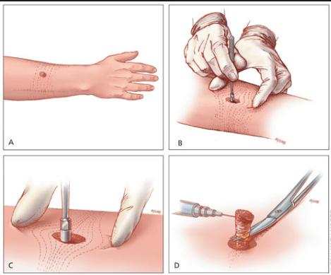 Биопсия кожных образований