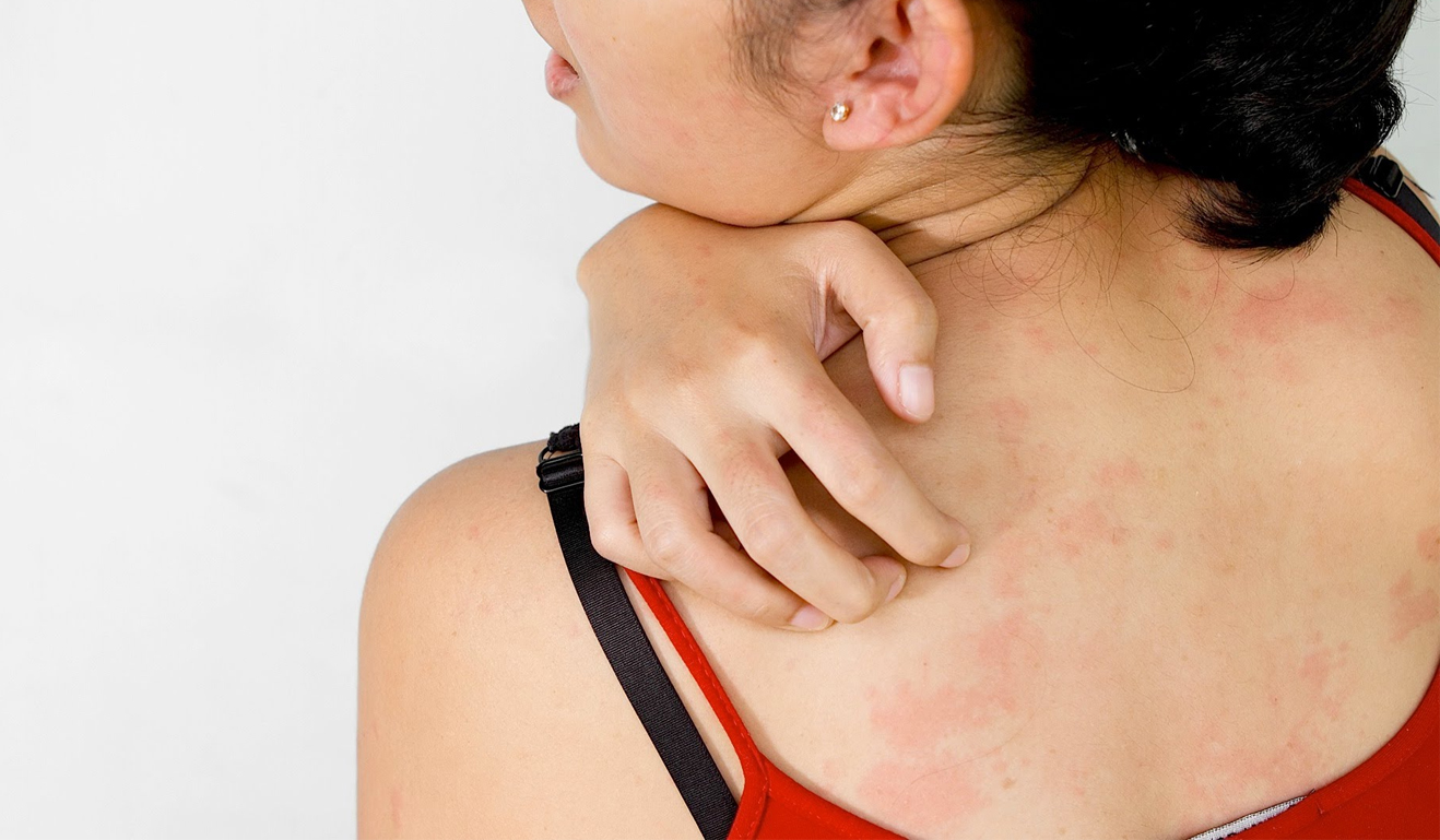 Опоясывающий герпес: чем опасна инфекция