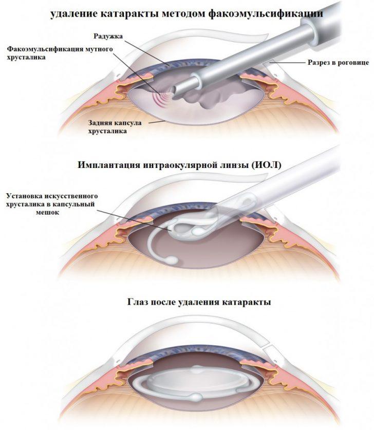 Этапы экстракции катаракты (схема)