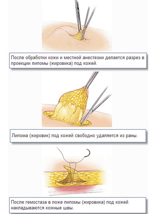 Этапы хирургического удаления жировика