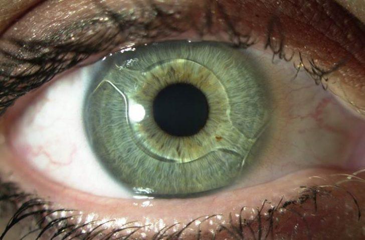 Глаз с имплантированной интраокулярной линзой