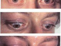 Глазные симптомы ДТЗ