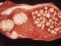 Холестериновые камни