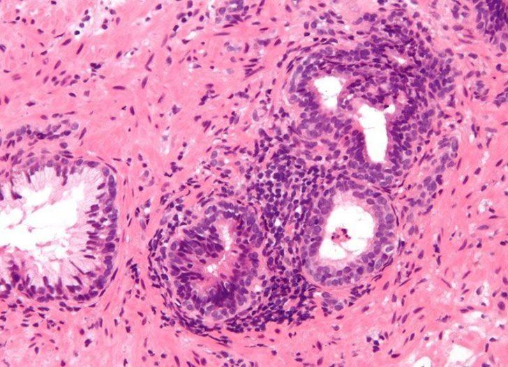 Хронический простатит (картина под микроскопом)