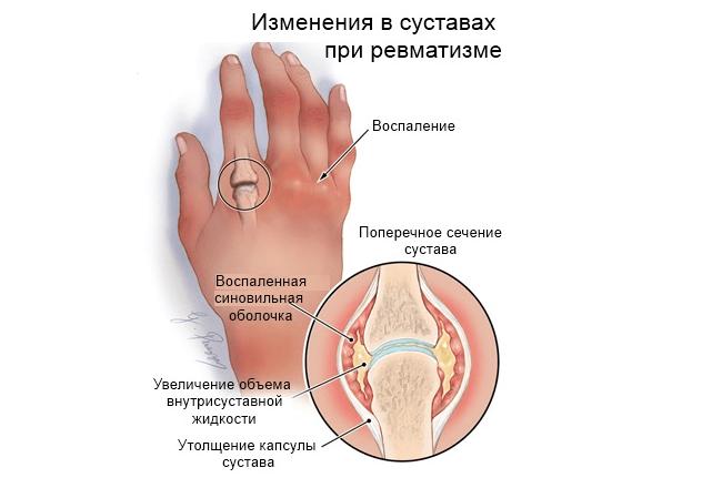 Изменения суставов при ревматизме (схема)