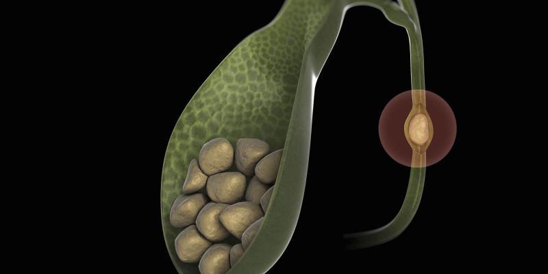 Желчекаменная болезнь: как избавиться от симптомов недуга