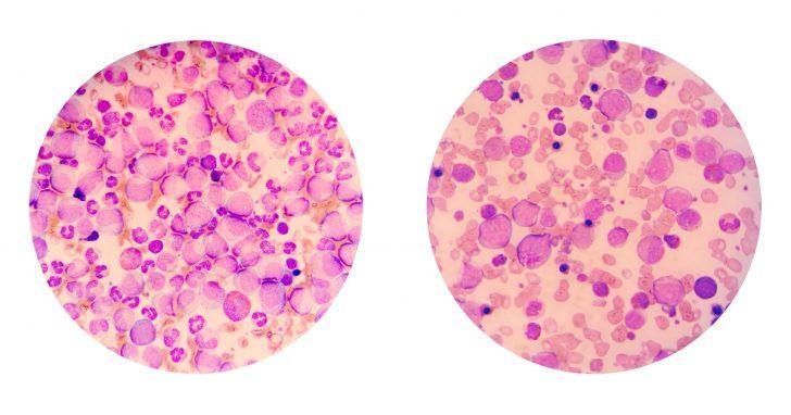 Клетки крови (картина под микроскопом)