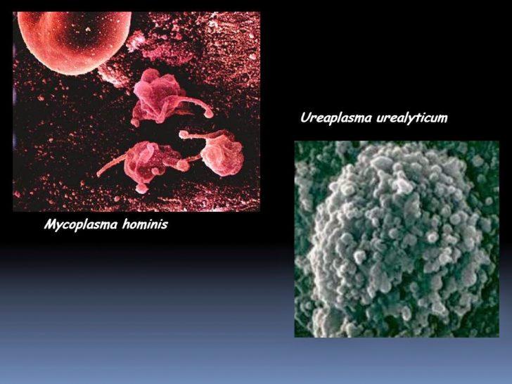 Микоплазма и уреаплазма